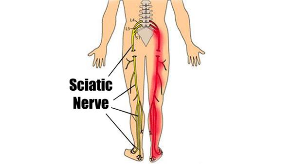 Sciatic Nerve Pain & Piriformis Syndrome Treatment - Columbus Ohio ...